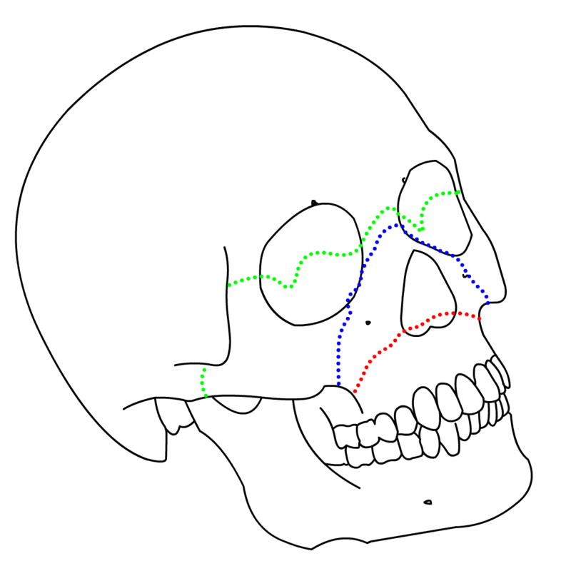 Lefort I (Red) Lefort II (Blue) and III (Green)