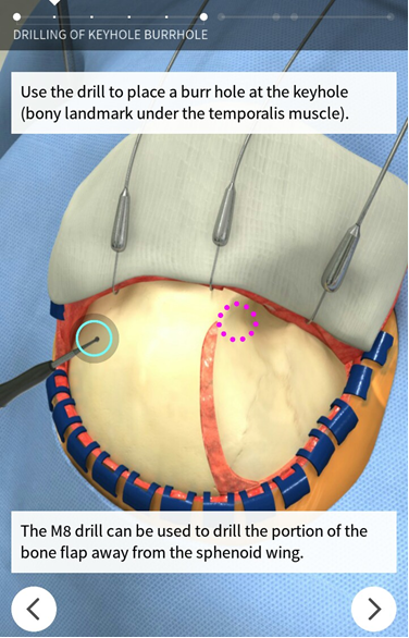 Touch surgery app