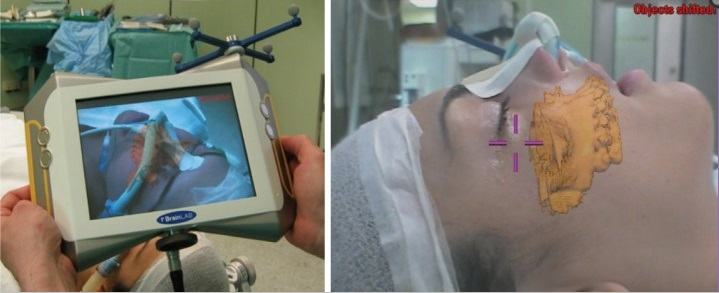 Application of AR-based display in orthognathic surgery