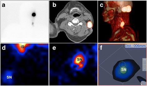 Representation of the SN in a. Lymphoscintigram b,c. SPECT/CT imaging d,e. Gamma camera alone f. processed image in Augmented Reality