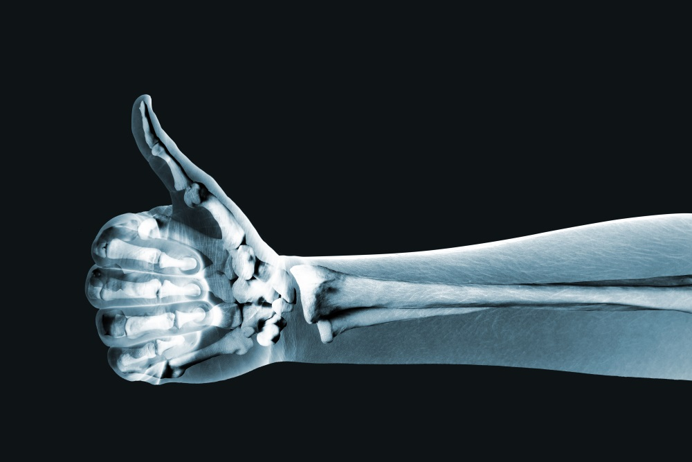Dramatized x ray of a hand thumbs up