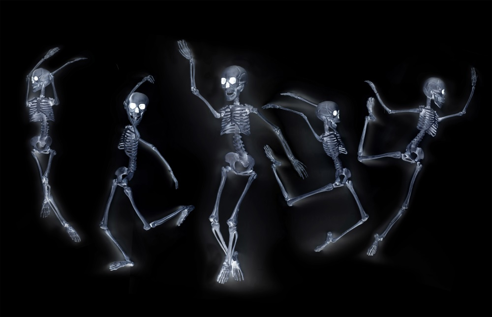 Dancing Skeletons X ray