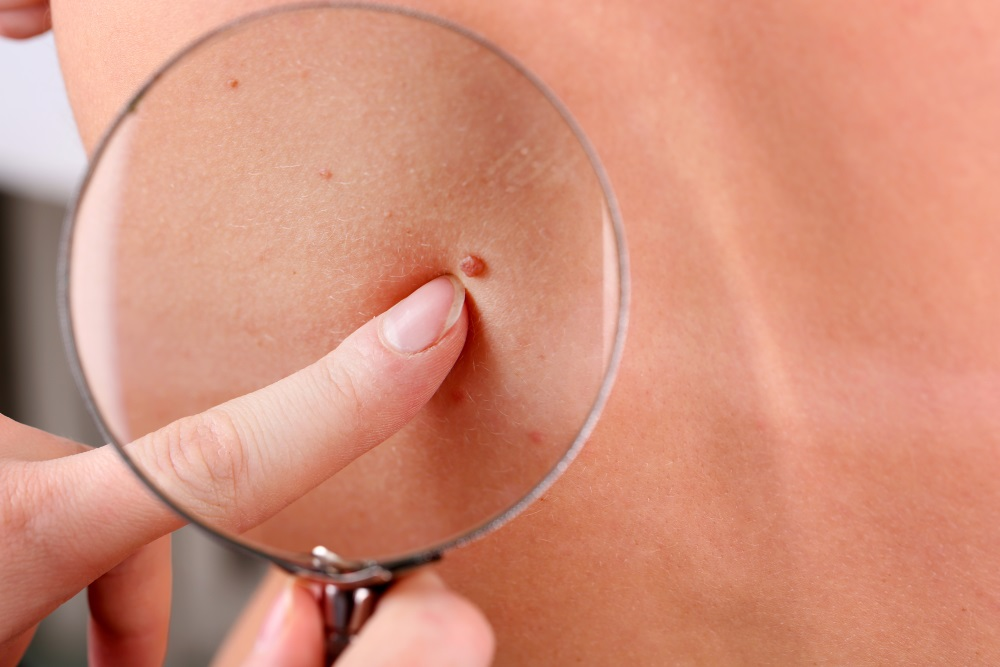 Dermatologist examines a birthmark of patient