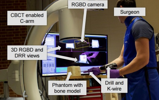 3D Augmented Reality System that uses a CBCT