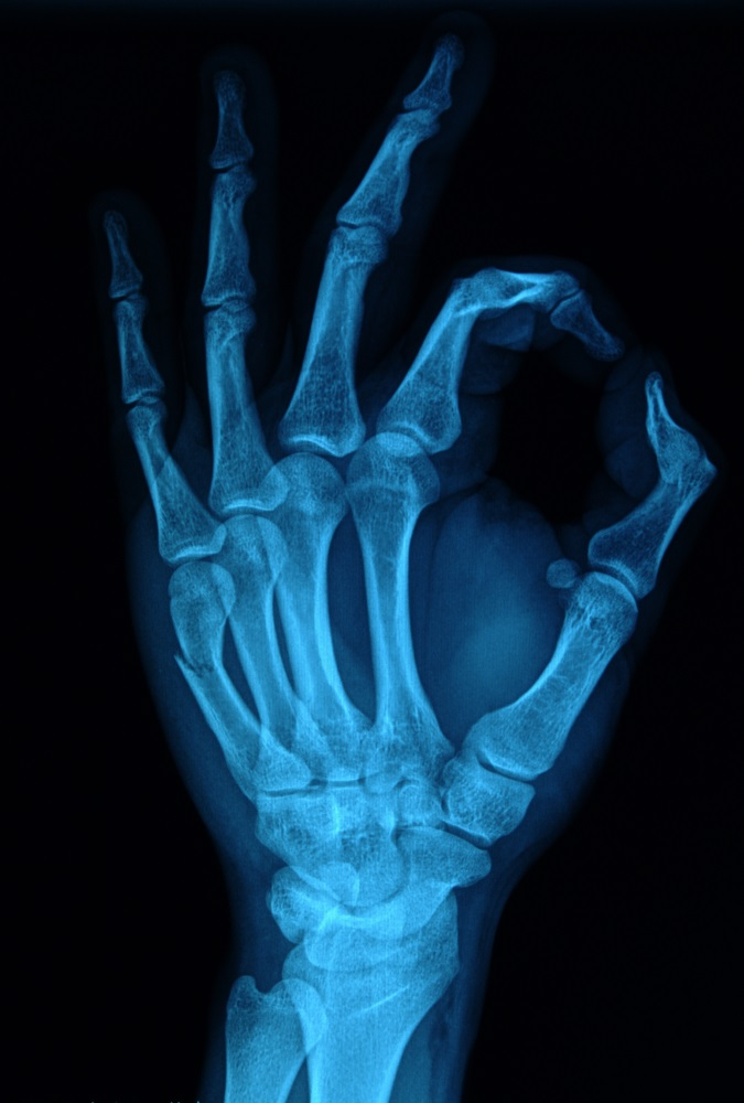 Hand x-ray