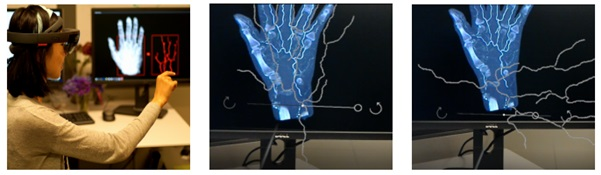 Virtual Blood Vessels in Complex Background using Stereo X-ray Images